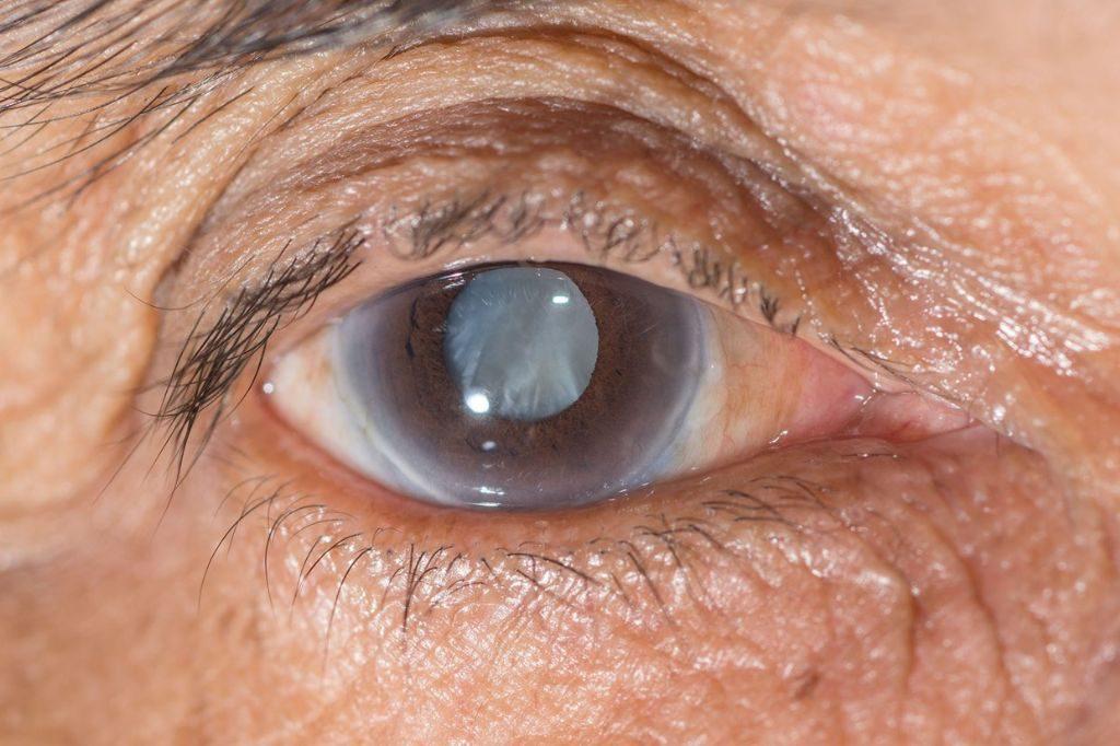 CIRURGIA DE GLAUCOMA: CAUSAS, SINTOMAS, TRATAMENTO E RISCOS